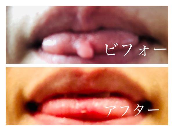 舌先に出来物が…「舌繊維腫」の画像レポを掲載!費用や痛みの経緯など。